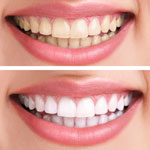 TOOTH WHITENING. Click to find out more.